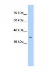 GTX47536 - CACNB2