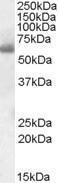 GTX47545 - SH2D3A
