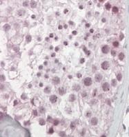 GTX47602 - Pescadillo homolog (PES1)