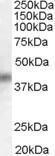 GTX47608 - DUSP1 / MKP1