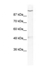 GTX47622 - KCNH6