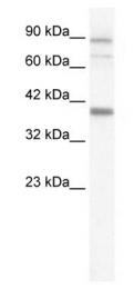 GTX47634 - KCNN3