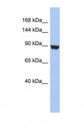 GTX47652 - KCNH6