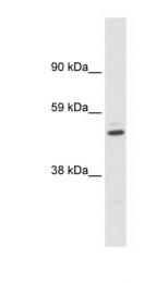 GTX47690 - KCNAB1