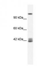 GTX47702 - NMDA Receptor 2C