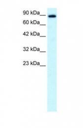 GTX47728 - KIF21A