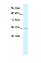 GTX47760 - Claudin-15 / CLDN15