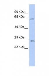 GTX47767 - Claudin-18 / CLDN18