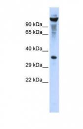 GTX47771 - RNASET2