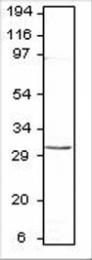 GTX47804 - Aquaporin-8