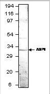 GTX47915 - Aquaporin-9