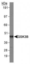 GTX48623 - GSK3 beta