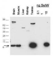 GTX48717 - Selenoprotein W (SELW)