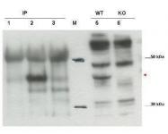 GTX48718 - CYTIP / PSCDBP
