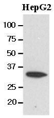 GTX50014 - Carbonyl reductase 3