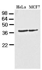 GTX50020 - Casein kinase I alpha