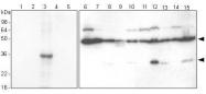 GTX50068 - Cathepsin H