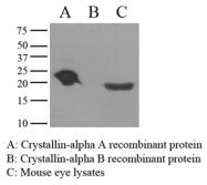 GTX50077 - Alpha-crystallin A chain