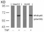 GTX50098 - RELA / NF-kB p65
