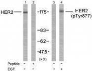 GTX50142 - CD340 / ERBB2 / HER2