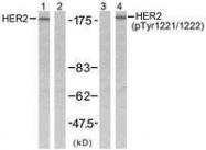 GTX50143 - CD340 / ERBB2 / HER2