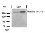 GTX50146 - CD340 / ERBB2 / HER2