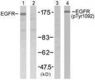 GTX50148 - EGFR / ERBB1