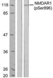 GTX50168 - NMDA Receptor 1