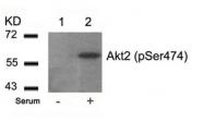 GTX50186 - AKT2 / PKB beta