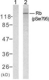 GTX50191 - Retinoblastoma-associated protein / RB1