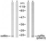 GTX50199 - Cofilin-1