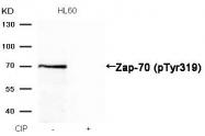 GTX50214 - ZAP70