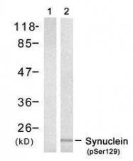 GTX50222 - Alpha-Synuclein / SNCA