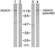 GTX50238 - HDAC5