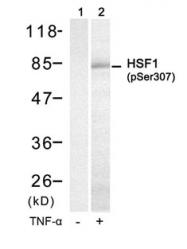 GTX50239 - Heat shock factor 1 / HSF1