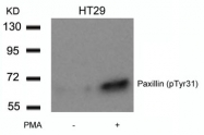 GTX50243 - Paxillin /  PXN