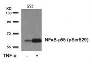 GTX50254 - RELA / NF-kB p65