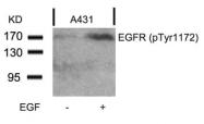 GTX50257 - EGFR / ERBB1