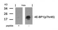GTX50259 - EIF4EBP1 / 4E-BP1