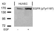 GTX50263 - EGFR / ERBB1