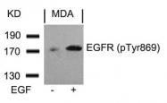 GTX50264 - EGFR / ERBB1