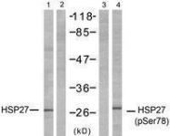 GTX50276 - HSPB1 / HSP27