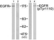 GTX50289 - EGFR / ERBB1