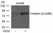 GTX50295 - Cortactin