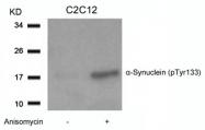 GTX50305 - Alpha-Synuclein / SNCA