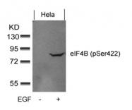 GTX50343 - EIF4B