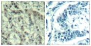 GTX50345 - Aurora kinase A
