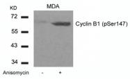 GTX50351 - Cyclin B1
