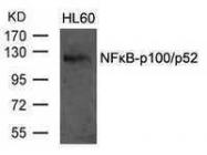 GTX50376 - NFKB2 / NF-kappa-B p100/p52