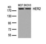 GTX50425 - CD340 / ERBB2 / HER2